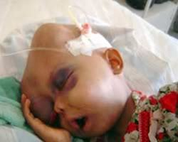 child with leukemia